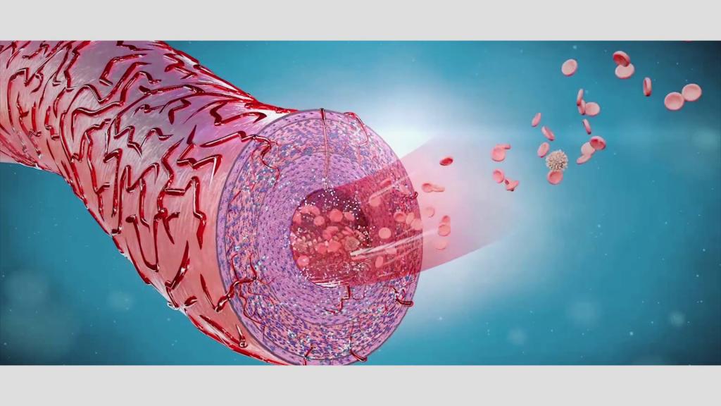 Betroffen von Arteriosklerose sind nach Haverichs Beobachtung Blutgefäße, die selbst zu ihrer eigenen Versorgung an ihrer Außenwand eigene, winzig kleine Blutgefäße haben.