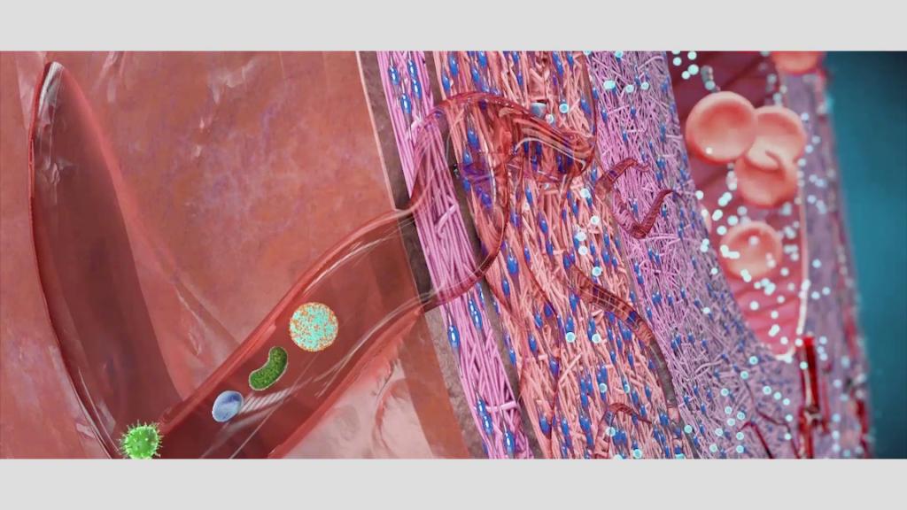 Verschließen sich diese Vasa vasorum, sterben Zellen vor allem in der mittleren Wandschicht ab: Es kommt zu einem Infarkt der Arterienwand. Häufigster Auslöser solcher Verschlüsse der Vasa vasorum sind Entzündungsreaktionen, die durch Viren, Bakterien und Feinstaub entstehen, aber auch durch schädliche Fettpartikel (oxidiertes LDL-Cholesterin). Seltener kommen nervale oder traumatische Ursachen vor.