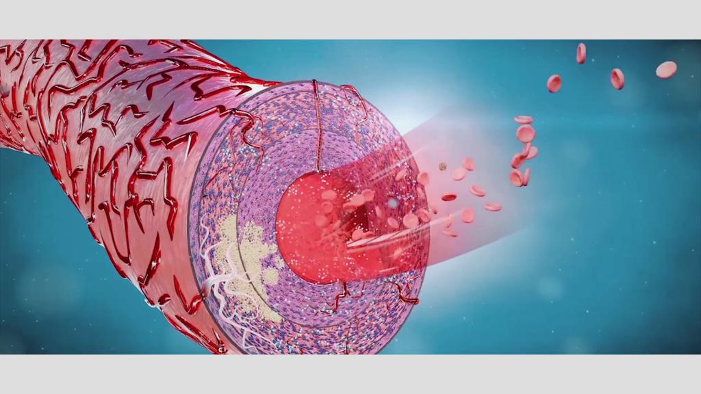 """Die abgestorbenen Zellen einschließlich der Fettreste werden nun vom Immunsystem abgebaut. Durch die Reparaturprozesse des Immunsystems entstehen dort """"Zellabfälle"""", die sogenannten Plaques, die zu einer Verdickung der Arterieninnenwand führen und schließlich einen Verschluss des Muttergefäßes herbeiführen können."""